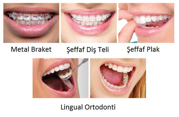 Şeffaf Diş Teli vs Şeffaf Plak vs Lingual Ortodonti