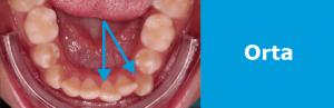 Ortodonti Tedavisi Fiyatları: orta zorluk 2-5 mm