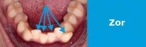 Ortodonti Tedavisi Fiyatları: zor vaka >5 mm