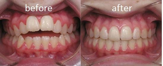 Ortodonti Tedavi Protokolu – Açık Kapanış
